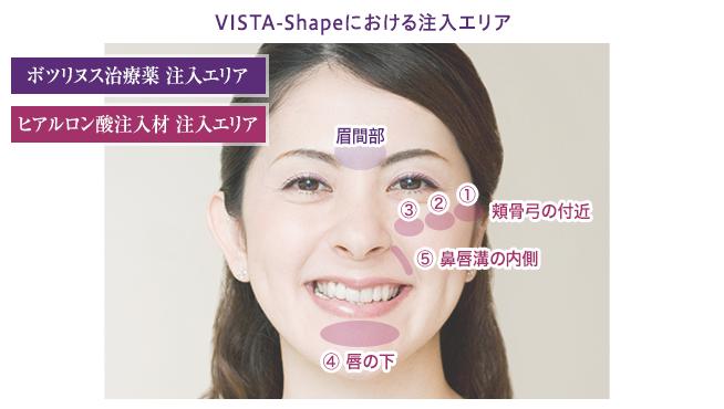 vista-shape_img_03.png